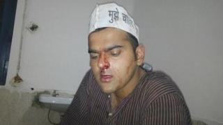 Man with nose bleed after an attack