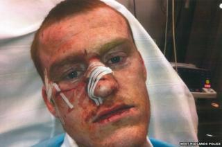 Man with slashed face