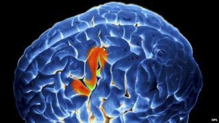 Brain activity during speech