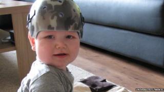 Corrective helmet