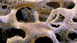 A bone with osteoporosis