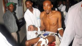 Wounded man arrives at hospital in Mombasa (3 May 2014)