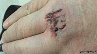Dog bite on Therese Coffey's hand