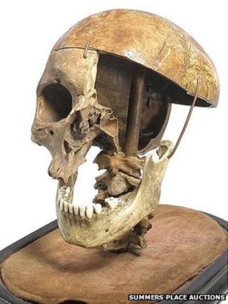 Felons skull