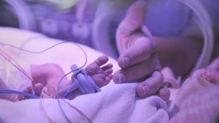 generic baby in neonatal