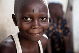 Ten-year-old Luc after scarification