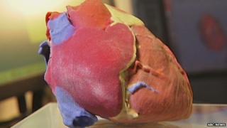 3D print of a human heart