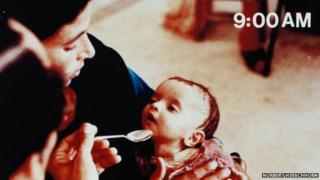 Baby being fed solution with spoon at 9.00 am, looks dehydrated