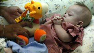 A Thai surrogate mother, Pattharamon Chanbua (not seen), 21, plays with her seven-month-old Down's Syndrome baby, Gammy at a hospital in Chonburi province, Thailand, 4 August 2014.