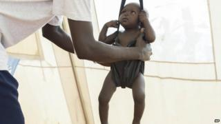 A child with suspected malnutrition is weighed at IMC nutrition program clinic in Malakal, South Sudan (25 July 2014)