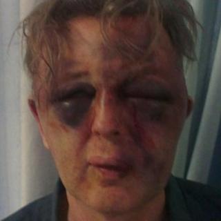 Victim's face