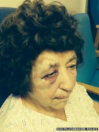 Burglary victim's injuries