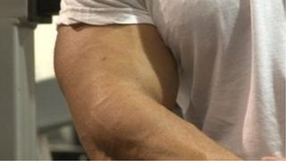 Anonymous steroid user's arm