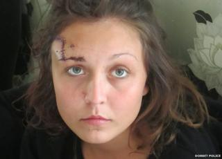 Jasmine Real, 22, required 62 stitches to her forehead