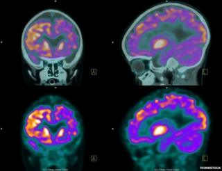 PET (positron emission tomography) scan of the brain