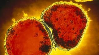 Cell llid yr ymennydd