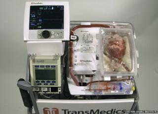 Transmedic machine