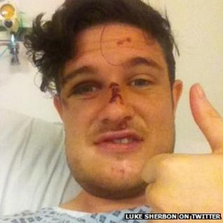 Luke Sherbon in hospital