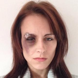 Katrina-Kay Hayward's eye injury on 5 Nov 2014