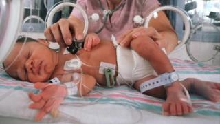 Newborn baby in an incubator