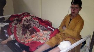 Many children among Afghan volleyball match bomb victims