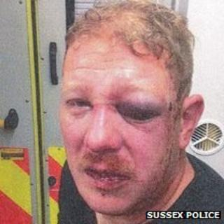 A photo of the victim taken shortly after the incident by police