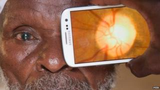 Patient's retina capture with Peek Retina