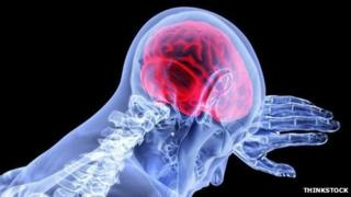Brain graphic. Pic: Thinkstock