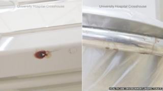 Blood spatter at Crosshouse Hospital
