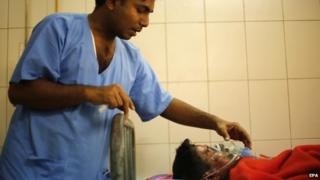 A fire victim is given medical treatment at the Dhaka Medical Hospital after suffering severe burns when unidentified people threw a hand-made petrol bomb at a bus, in Dhaka, Bangladesh, 03 February 2015.