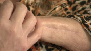 Scar on Melanie Watt's arm after a dog attack