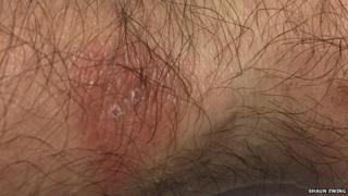 A rash