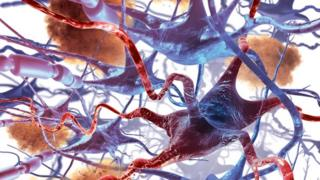 nerve cell death in Alzheimer's
