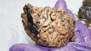 Brain found near York