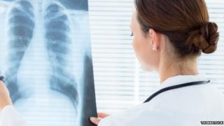 There has been a review of thousands of x-rays