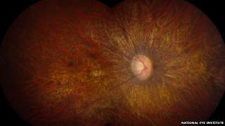 LCA affects the functioning of the retina, the light-sensitive tissue at the back of the eye