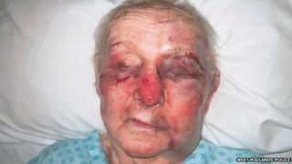 Victim with a bruised face