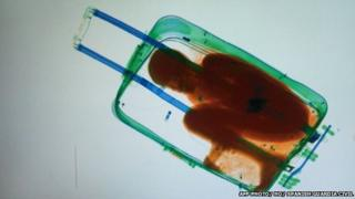 A picture provided by Spanish Guardia Civil on May 8, 2015 shows an X-ray image showing an 8-year-old sub-Saharan boy hidden in a suitcase.