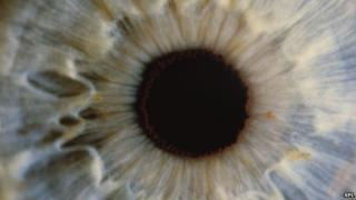 Eye stock photo - viruses can cause inflammation in the eye