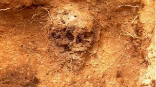 Catherine's skull