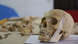 A skull in the Institute of Legal Medicine in San Salvador