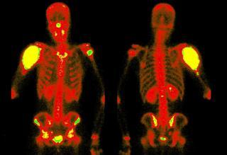 Scan showing bones