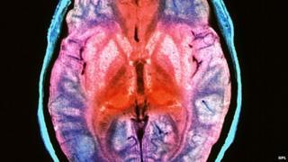 CJD injected brain
