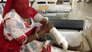 A Dalit woman Papudi, whose hands and legs were broken in the incident
