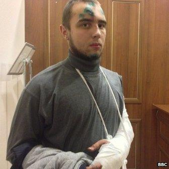 Mikhailo Niskoguz, his cuts covered with a green antiseptic, also says his arm was broken in the attack