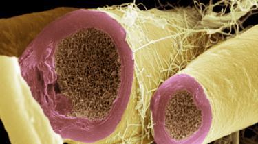Mielina alrededor de fibras nerviosas