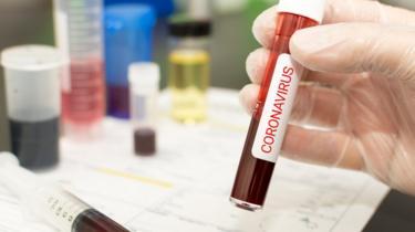 Exame de coronavírus