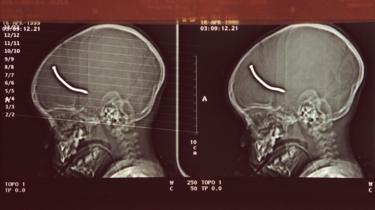 X-ray of boy's injuries