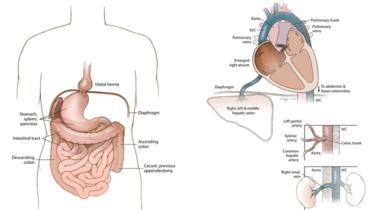 Medical illustration of situs inversus with levocardia