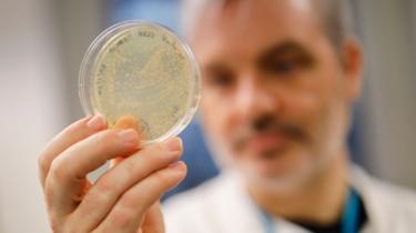 Médico britânico segura uma placa de Petri com bactérias infectadas por coronavírus